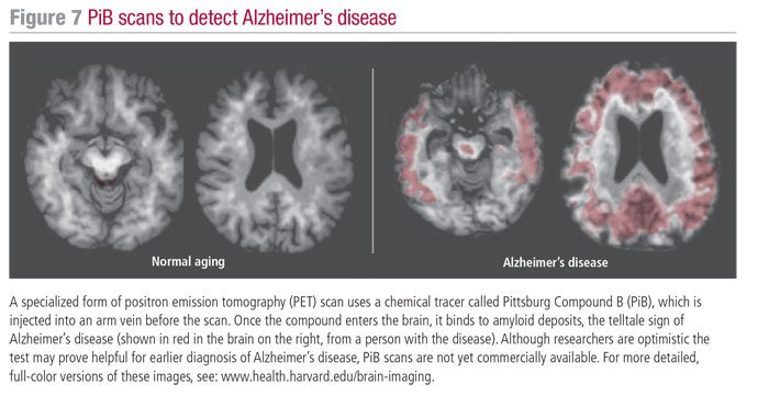 Recognizing Alzheimer's Disease - HelpGuide org