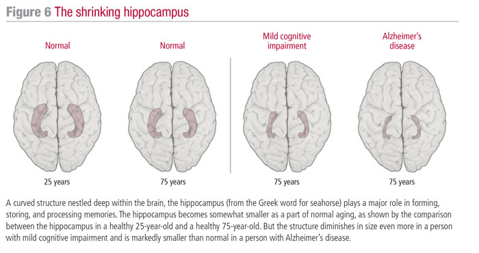 The shrinking hippocampus